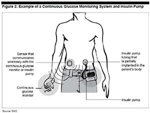 Working of Insulin Pumps and Wireless controller