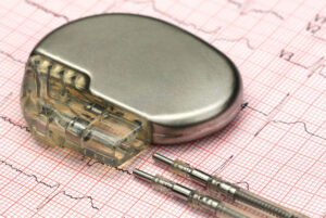 Pacemaker on Electrocardiograph